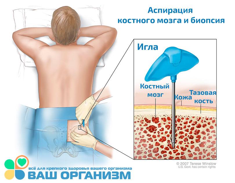 injekciók a csípőízület fájdalmához intramuszkulárisan a lábízület ízületi tünetei és kezelése