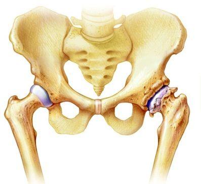 az artrózis kezelésének szakaszai fájó és duzzadt ujj az ízületben