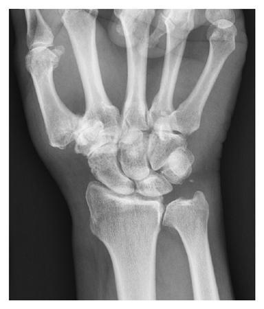 Dr. Diag - Radiocarpalis arthrosis