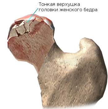 Csípőizületi porckopás   Dr. Gergely Zsolt