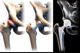 csípőízületi arthrosis injekciók kezelésre