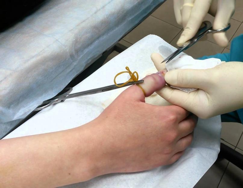 csípőzsír kezelés osteoarthritis csípőfájdalom a harmadik trimeszterben