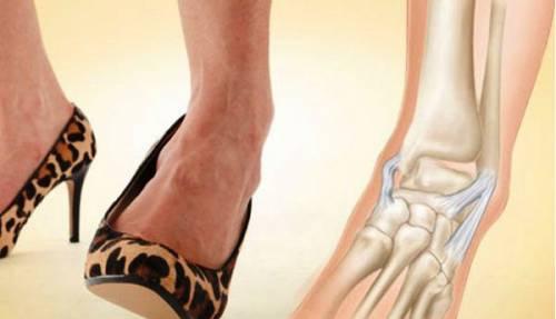 Varrni vagy nem varrni? – A külbokaszalag szakadásról - Patika Magazin Online