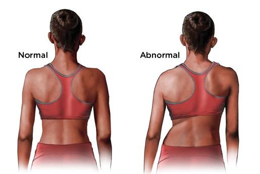 torna a gerinc artrózisának kezelésére