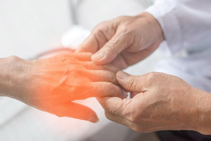 a jobb kezüket kezelő artritisz