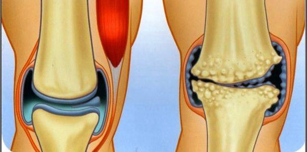 a térd gyógyult artrózisa