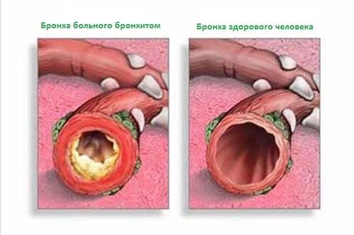 együttes kezelés mustárvakolatokkal a térd meniszkuszának károsodása 2 fokos kezelésnél