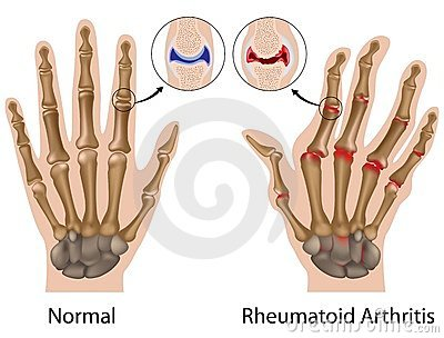 Az ujjak ízületei kennek Krumpli megvonással a reuma ellen!