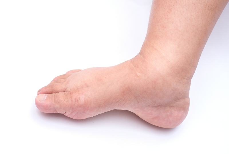 Ödémás láb okai, kivizsgálása, kezelése - KardioKözpont