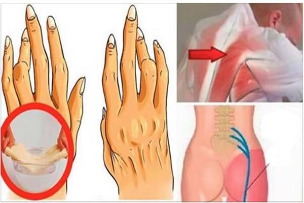 a térd deformáló artrózisának következményei eszköz csípőízületi gyulladás kezelésére