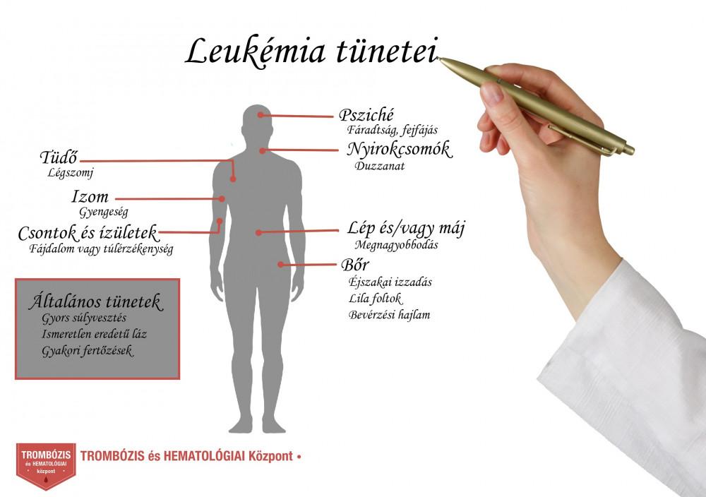 ízületi reuma ahol kezelni