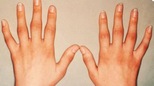 artrózis kezelése teraflex vállízület problémái