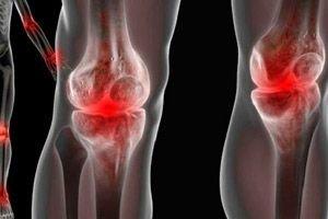 csípőfájdalom mit kell tennem, vélemények a boka ízületének polyarthritis kezelése
