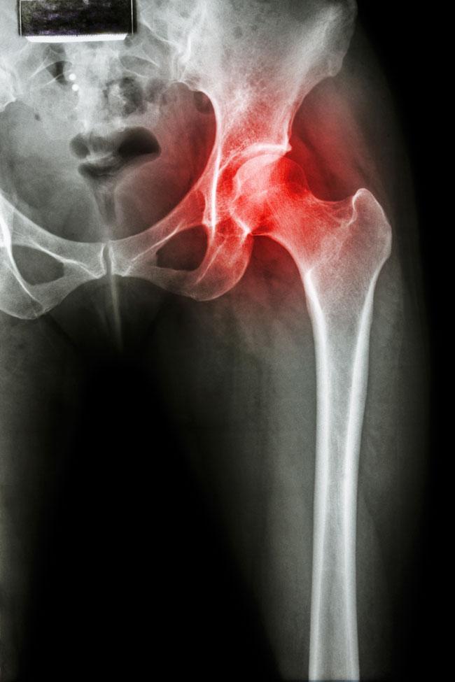 akut fájdalom csípőízület segít