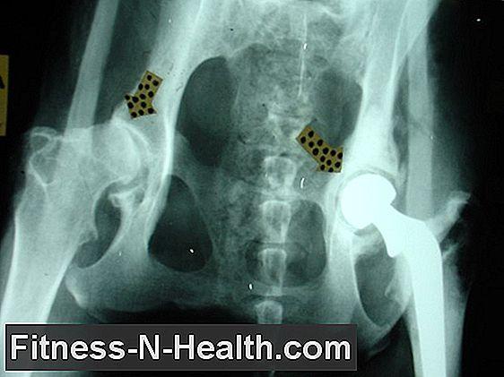túlmelegedés és ízületi fájdalmak a térd keresztező ligamentuma károsodásának tünetei