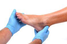 hogyan lehet eltávolítani a duzzanatot a lábujjak ízületeiről fájdalom a térdízületben, és nem hajlik