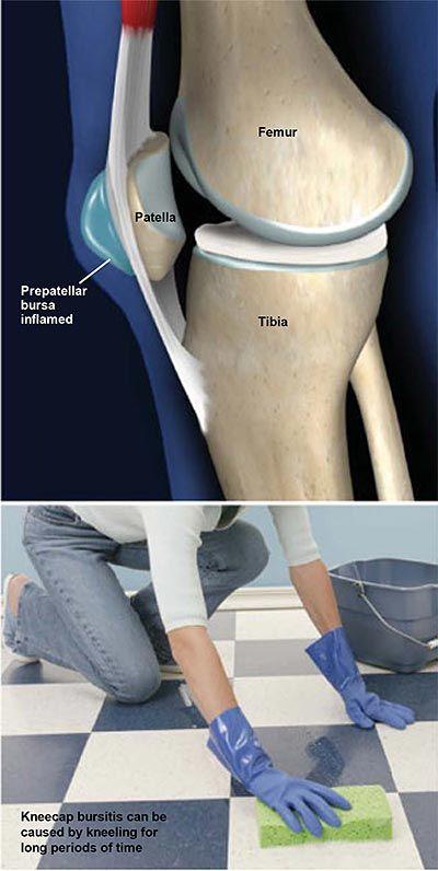 hogyan kezeljük a láb ízületeinek diszlokációját