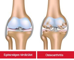 a csípőízület artrózisának hatékony kezelése