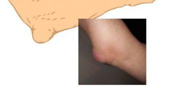 a könyök bursitisének ízületi gyulladása