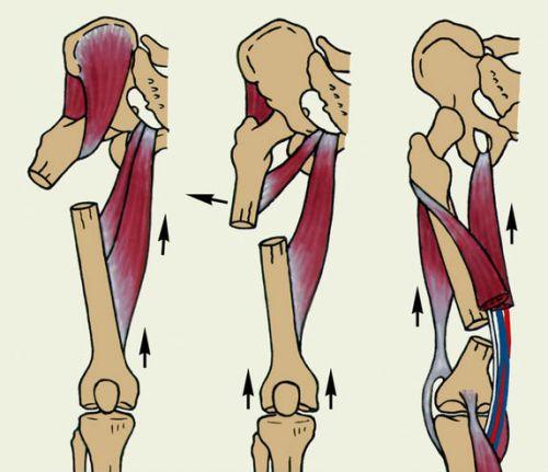 Felnőtteknél a csípő diszplázia: a tünetek és a legjobb kezelések - Fej July