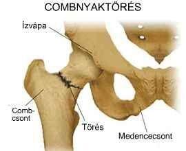 A csípőtáji törések típusai és módszerei