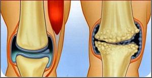 artrózis és ízületi gyulladás kezelés