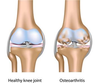 a vállízület osteochondritis kezelése