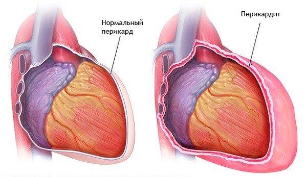 fájdalom a bal kar és a láb ízületeiben poszttraumás térdgyulladás