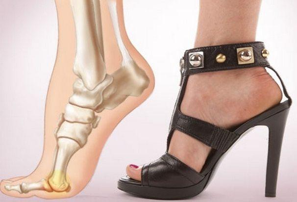 Fixátorok és korrektorok a nagy lábujj valgus deformitásának kezelésére