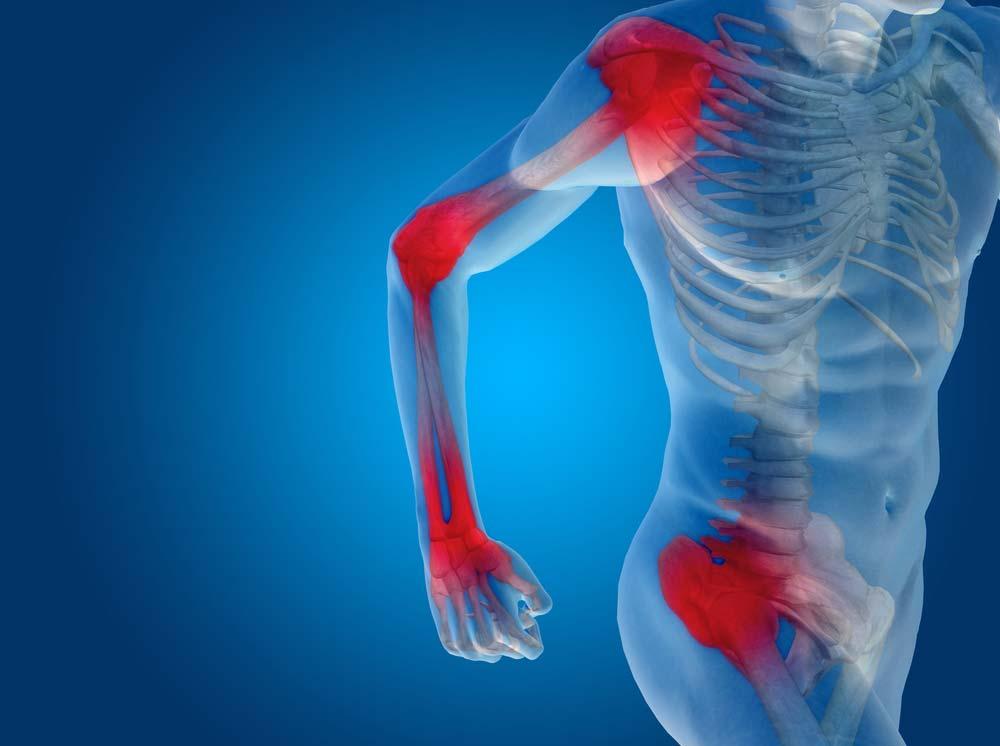 gyógyszernevek ízületi fájdalomra 2 fokozatú artrózis kezelés