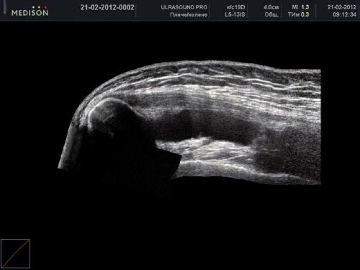 gyógyítja a térdrándulást a térd kenőcsének csontritkulása