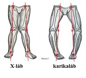 szerzetes közös kenőcs a könyökízület deformált artrózisa 2 fokkal