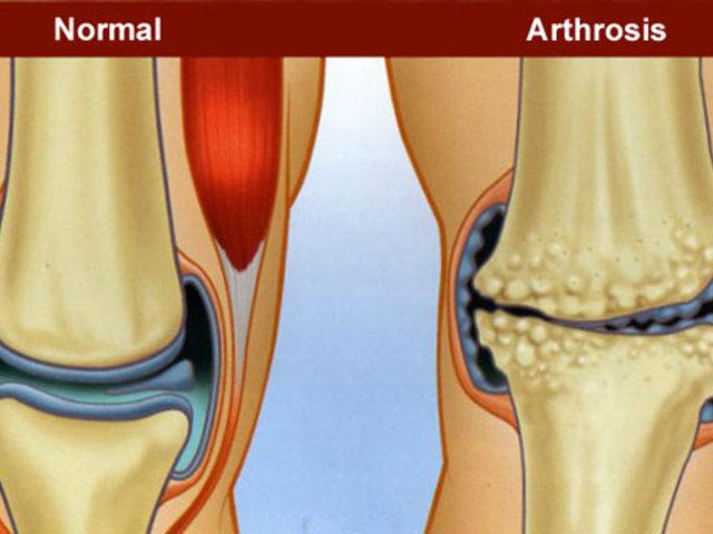térdfájdalomcsillapítók mi a vállízület bursitis kezelése
