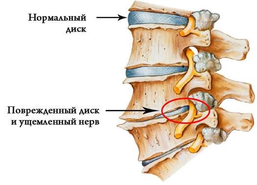 térdízületi fájdalom ereszkedése
