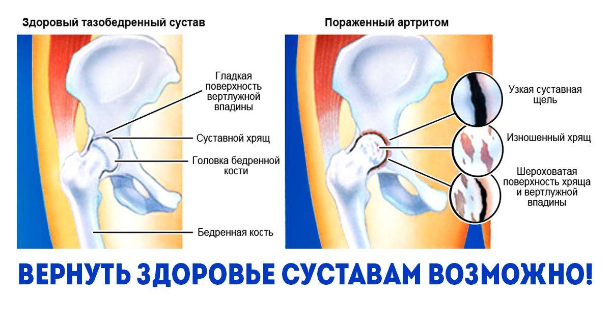 Reumatoid artritisz   BENU Gyógyszertárak
