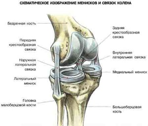 metatarsalis phalangus arthrosis ízületek ujjai kezelése