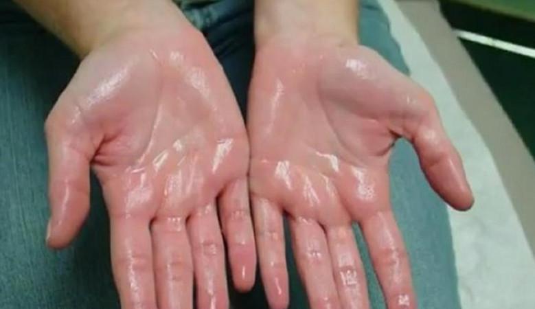 a kézízületek gyakran fájnak izületi folyadék termelődése