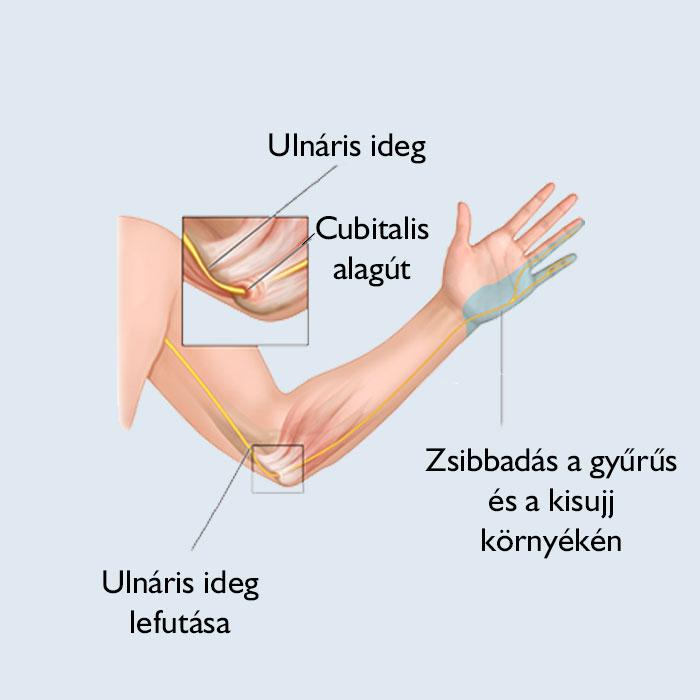 könyök sérülés kezelése ízület szalag