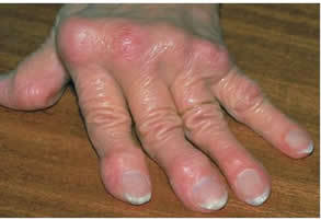 csontok és ízületek veleszületett betegségei ízületi fájdalom a lábcsontról
