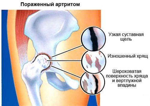 Éles fájdalom van a csípőízületben. Mozgásszervi betegségek