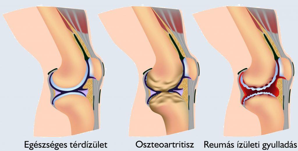 a csípőízület fáj és a láb zsibbad)