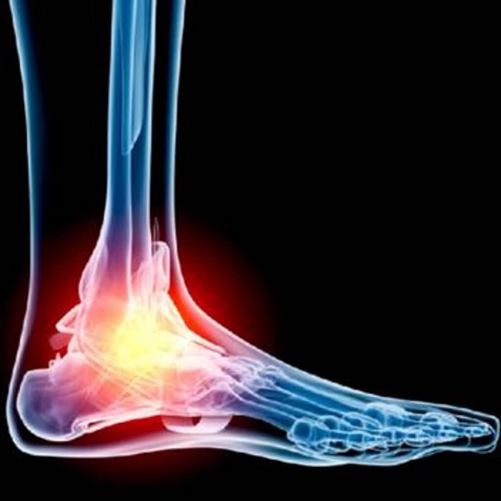 ízületek futó fájdalma a láb ízületeiben