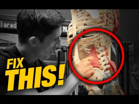lumbosacral fájdalom a csípőízületekben a bal térdízület belső meniszkuszának krónikus károsodása