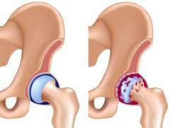 homeopátiás gyógyszerek osteochondrozis és ízületi gyulladás kezelésére