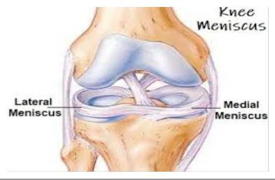 A sporttal járó térd sérülések különösen gyakoriak