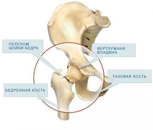 a csípőcsont fáj