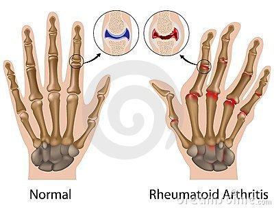 ízületek polyarthritis kézkezelése