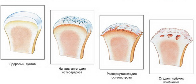minden ízület deformáló artrózisának kezelése a hát és az ízületek előkészítése