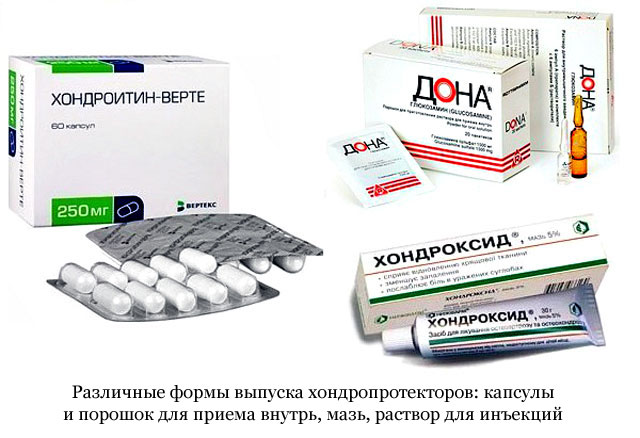 OTSZ Online - Az NSAID-ok adását lehetőleg előzze meg a kondroprotekció