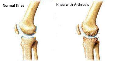 táplálkozás az artrózis kezelésében